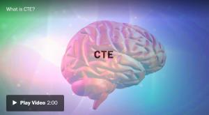 <font color='#0000ff'>[Video] Brain study examined 111 former NFL players. Only one didn't have CTE (만성뇌외상병)</font>